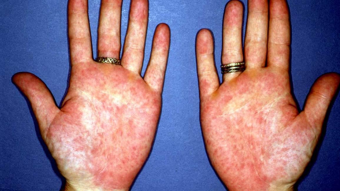 supliment suplimentar pentru detoxifierea ficatului anticorpi împotriva antigenelor helmintice
