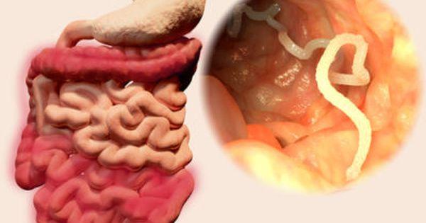 pastile de enterobioză, unde să treacă Este posibilă îndepărtarea papilomelor de pe gât