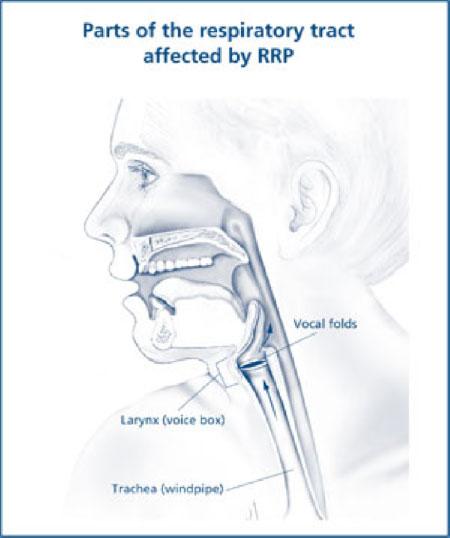 respiratory papillomatosis rrp) medicamente pentru helminti pentru copii