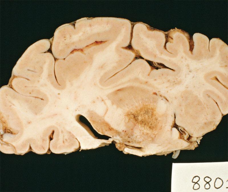 adică paraziți ai creierului
