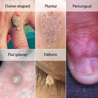 wart on hands removal