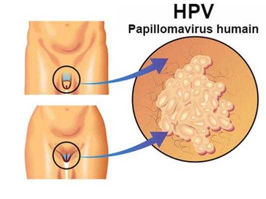 definition of papilloma virus