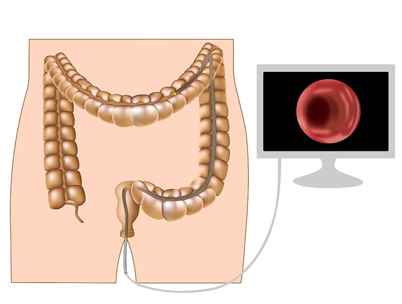 tipuri cancer colorectal