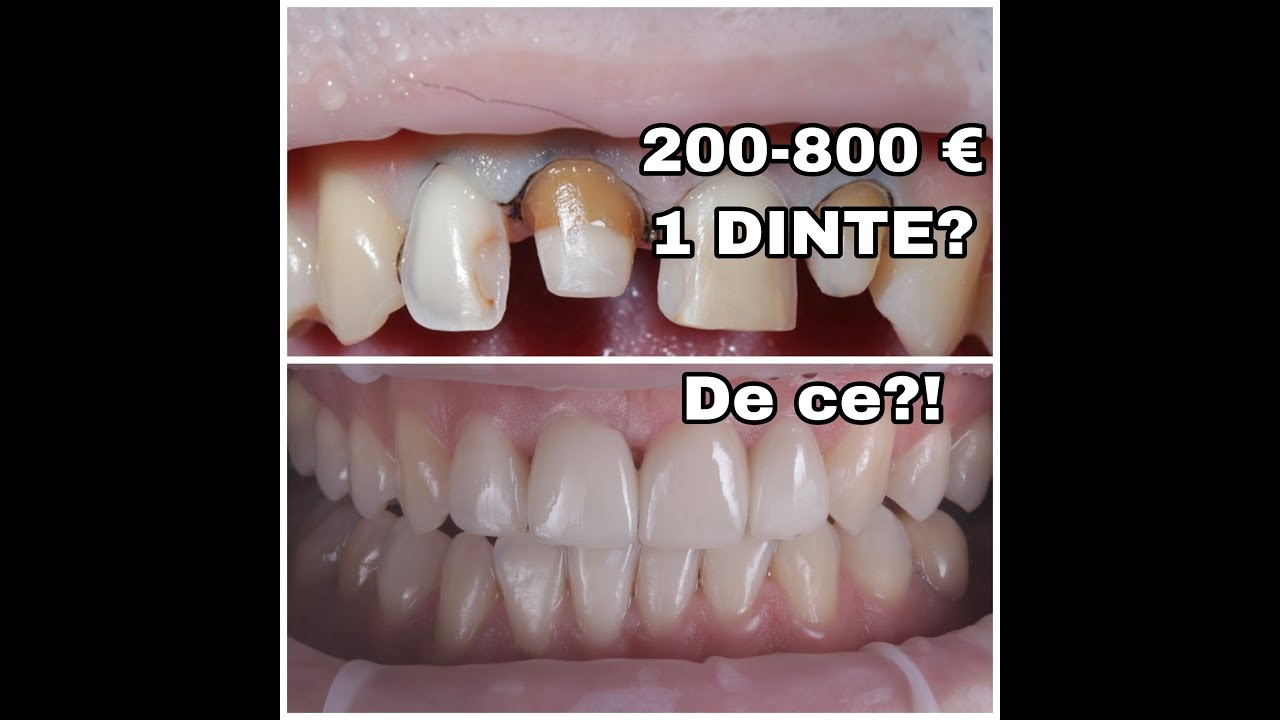 tipuri de viermi și tratament dentar