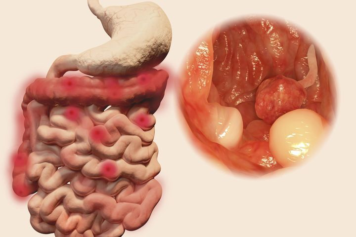 schistosomiasis liver