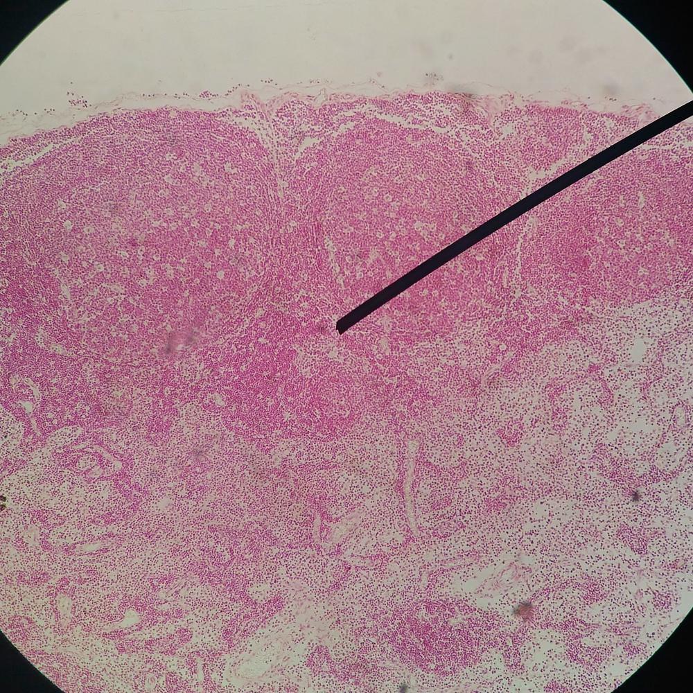 durata papilloma virus uomo