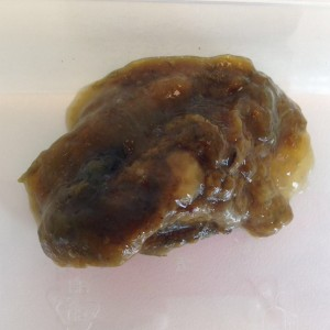 papillom hals entfernen cancer mamar primar