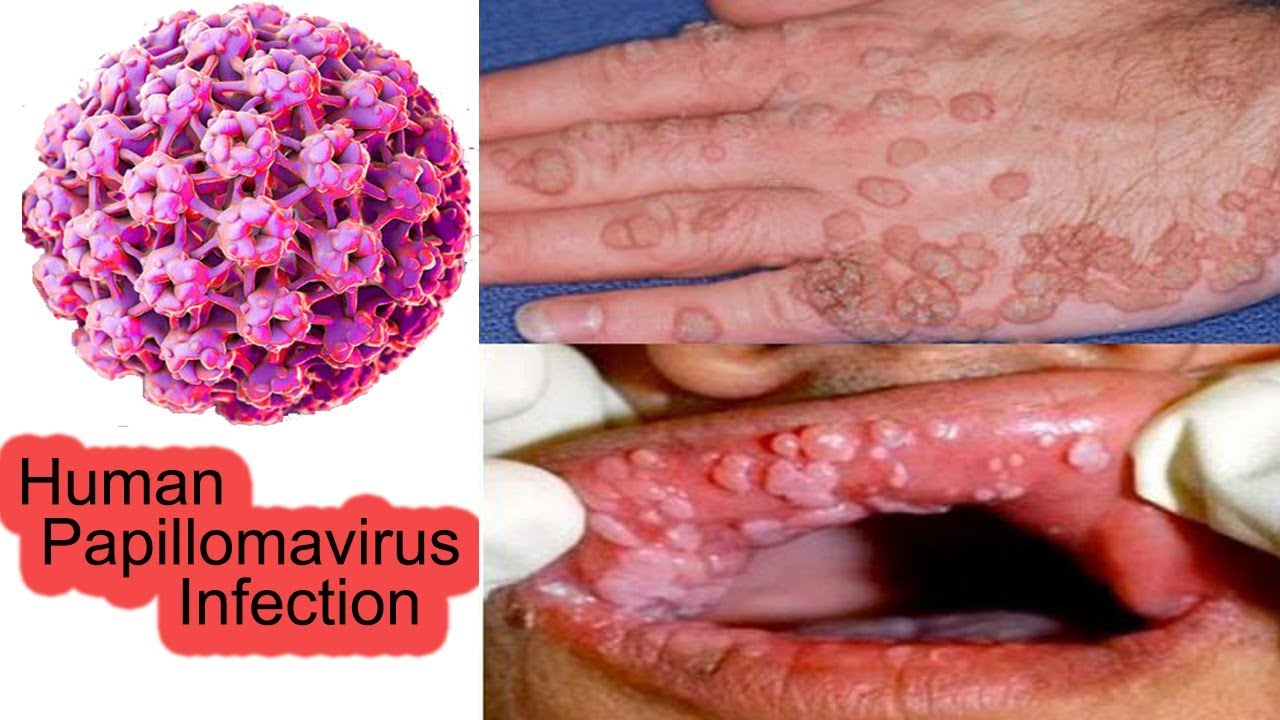 Squamous papillomas meaning