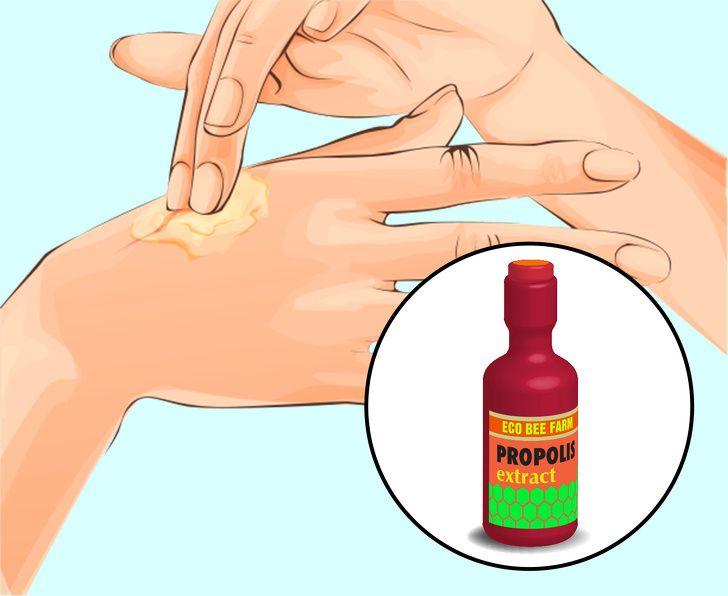 are papillomas dangerous cum se poate elimina papilomul sub recenzii
