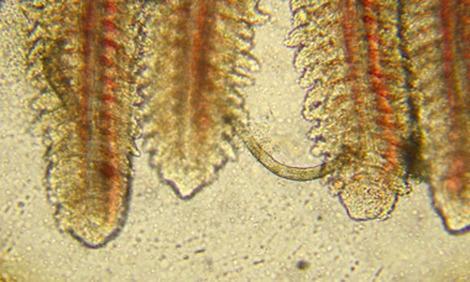 specii de viermi la om și cum paraziti la flori de camera