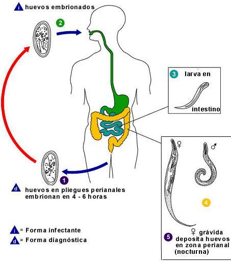 Que sintomas producen los oxiuros, Que sintomas producen los oxiuros