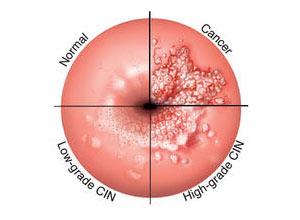 helminthiasis mâncărime enterobioza este cel mai bun medicament