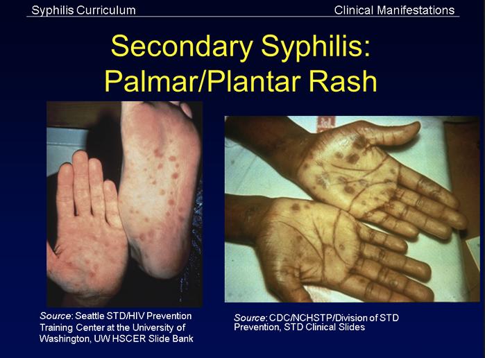 surse de infecție cu viermi infeccoes helminthics
