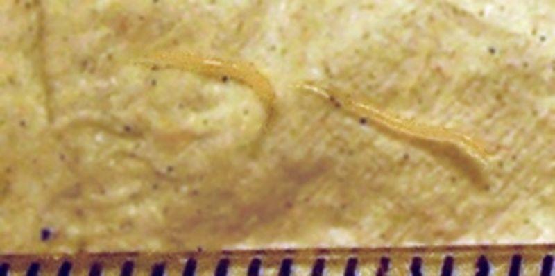 parazitii intestinali simptome dimensiunea maximă a viermilor