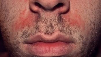 dermatite bouche