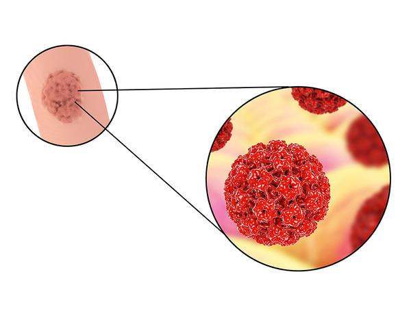 cancerul este tratabil inflamație a axilă