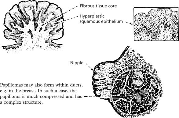 giant cell papilloma ce sunt negi genitale și papiloame
