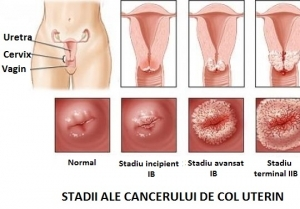 Semne de alarma: cancere   ceas-mana.ro