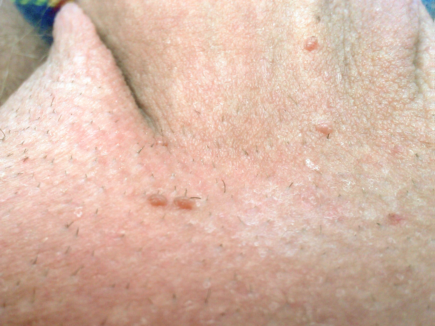 papiloma fibroepitelial escamoso