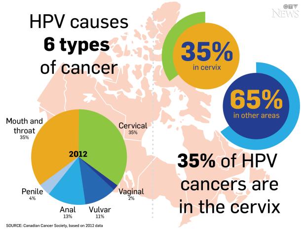 Hpv virus on throat Hpv virus causes throat cancer - ceas-mana.ro