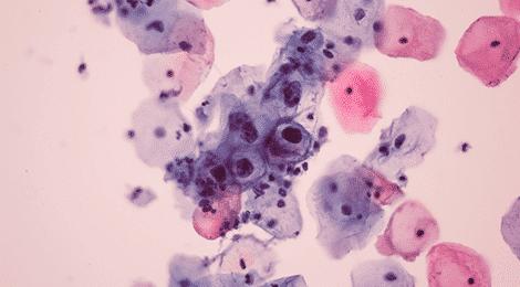 define human papillomavirus