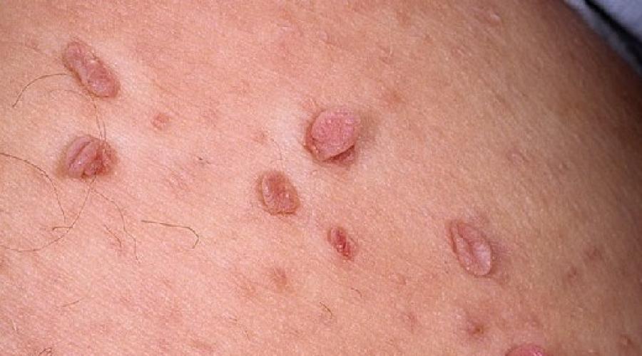 ce viermi provoacă alergii la copii papiloma escamoso en boca tratamiento