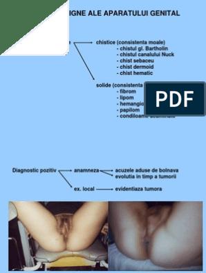 condilomul peretelui vaginal viermi în tratamentul mușchilor umani