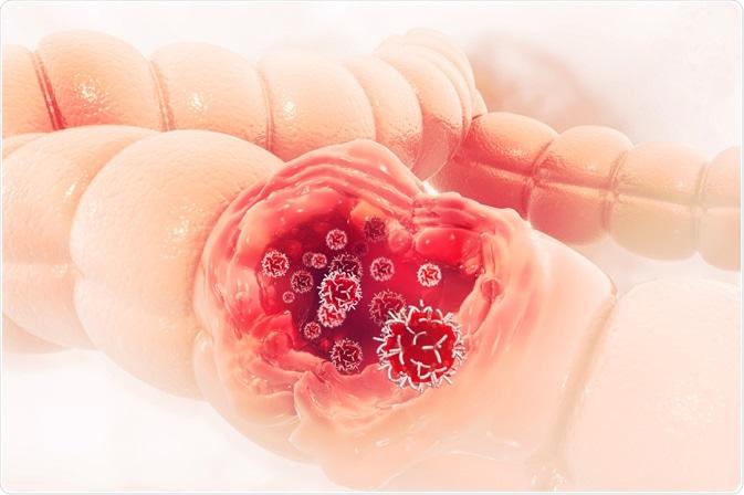 ricerca del papilloma virus papilloma virus resta per sempre