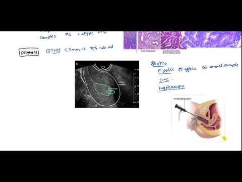 paraziți și vectori manager editorial cancer de prostata uptodate