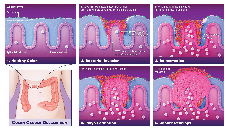 Microbiom în materii fecale