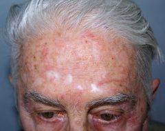 cancer de piele acnee viermi pentru un copil