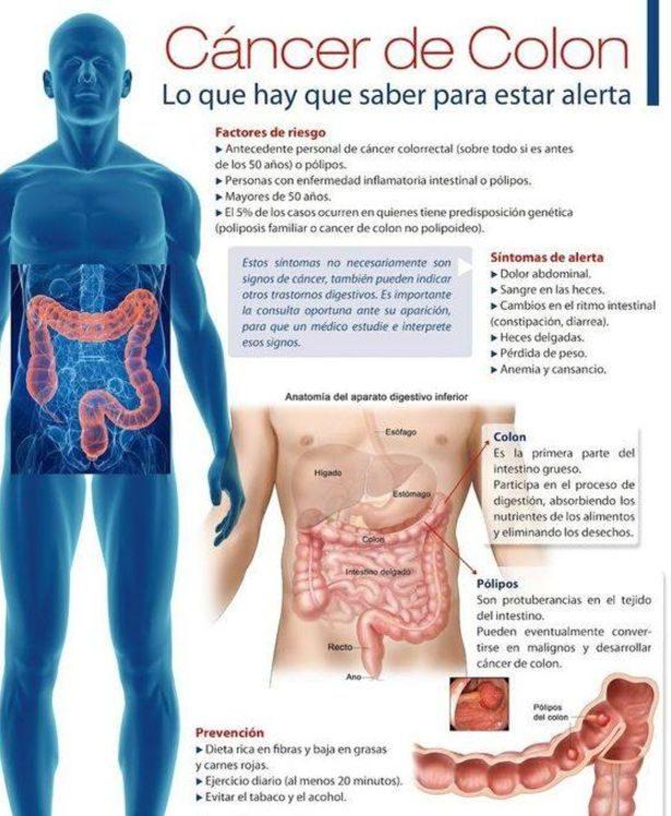 cancer de colon la tineri