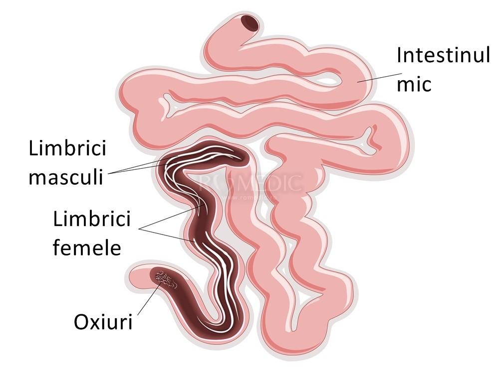 Tratament oxiuri copii 1 an, Oxiuroza (Enterobioza)