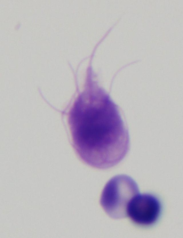 pancreatic cancer amboss medicamente pentru paraziții corpului uman