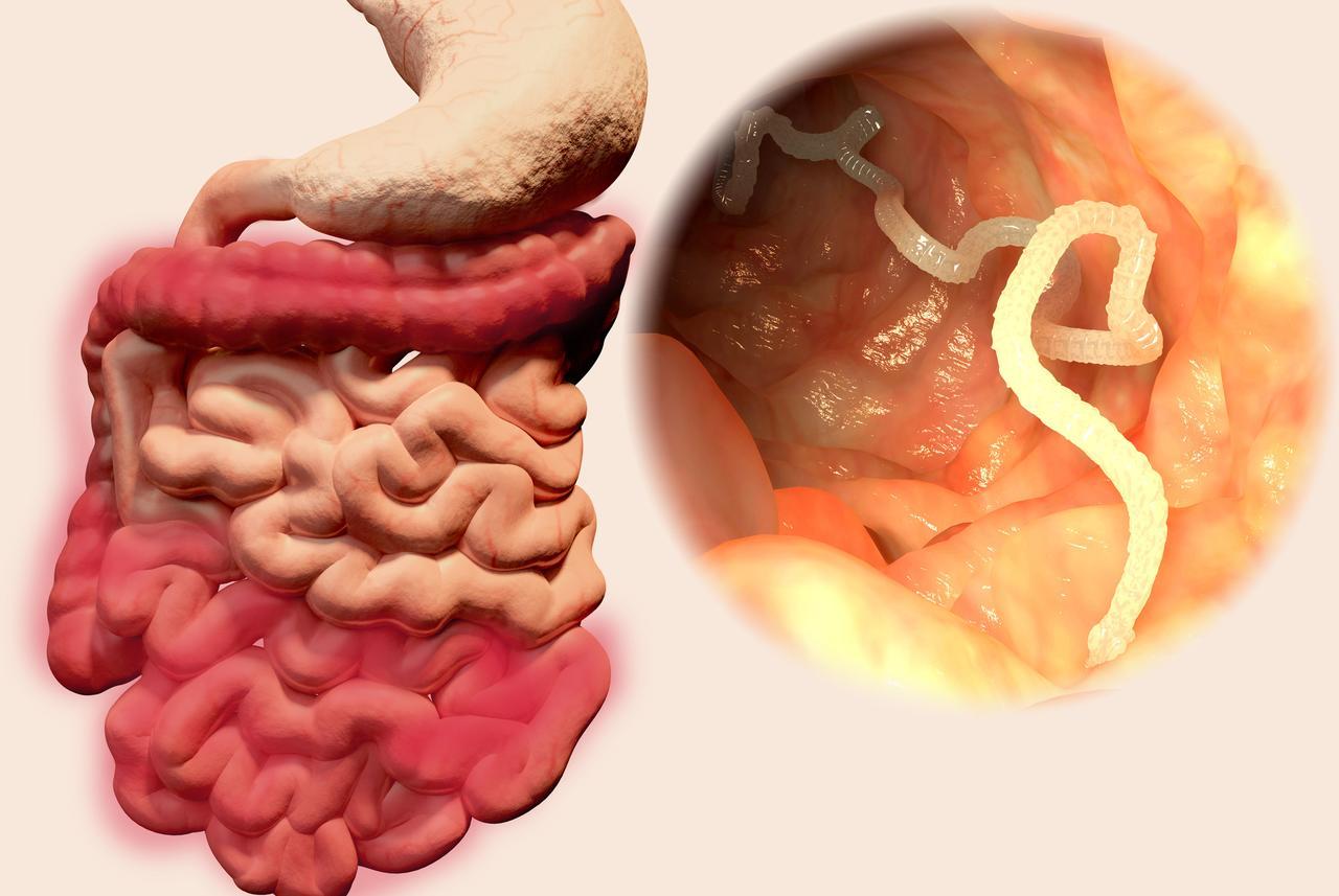 paraziti u crijevima slike este cel mai eficient tratament cu paraziți