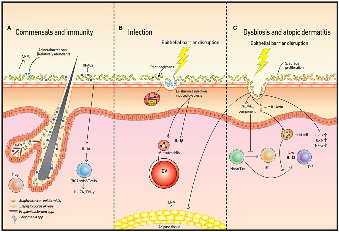 dysbiosis skin problems giardiasis și tratare embaraz