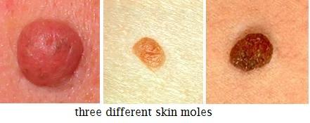 are papillomas dangerous am embranchement des plathelminthes
