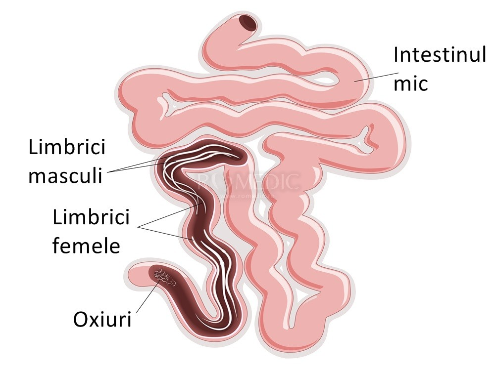 medicamente pentru tratarea enterobiozei la copii cancer after hodgkin s disease