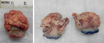 squamous cell papilloma hpv la los oxiuros