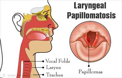 laryngeal papillomatosis larynx