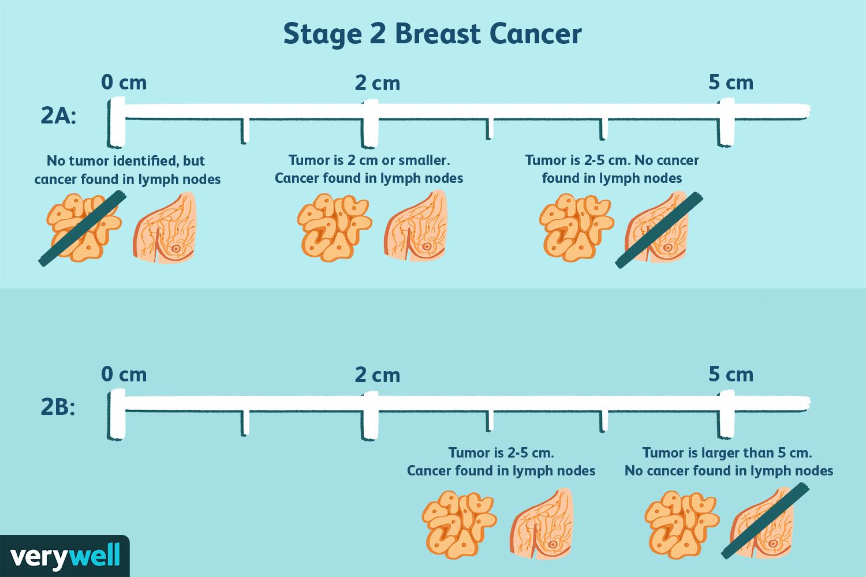 metastatic cancer no treatment hpv high risk on lab bill