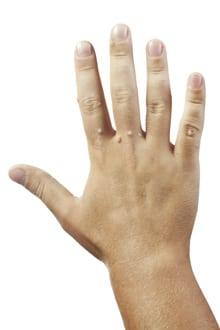 semne de negi și tratament panglică largă și ciclopuri