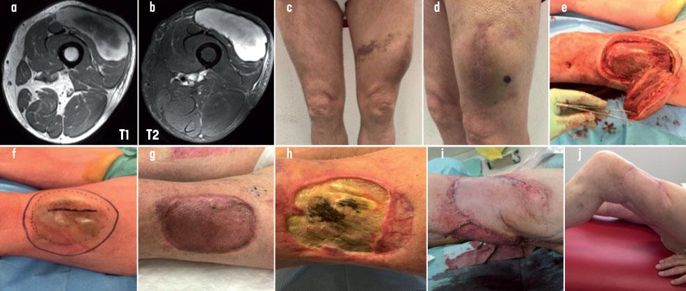 cancer sarcome genou