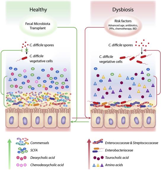 c difficile dysbiosis vindeca paraziții în litri