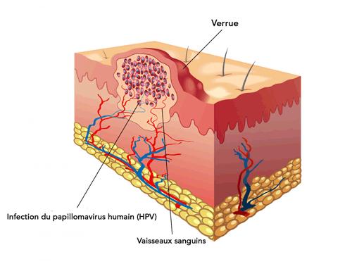 papillomavirus et traitement naturel cum se tratează negii genitali ai vaginului