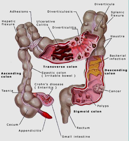 reactii la detoxifiere helminth therapy for ms