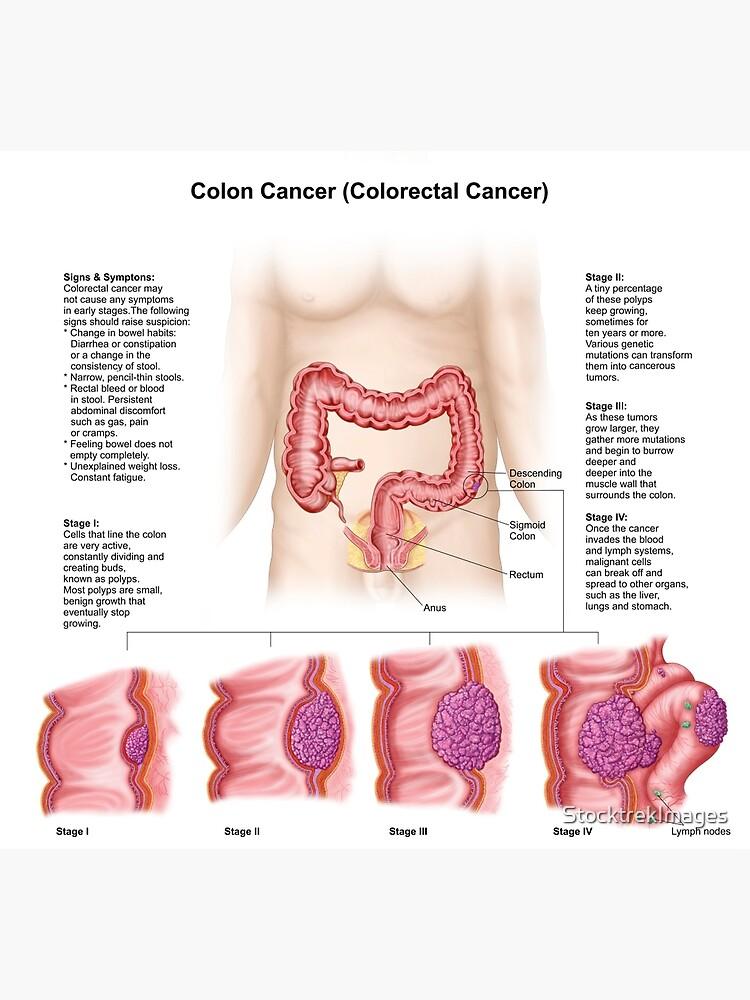 Cancer de colon etapas. Etapele cancerului - care sunt stadiile de evolutie naturală a cancerului
