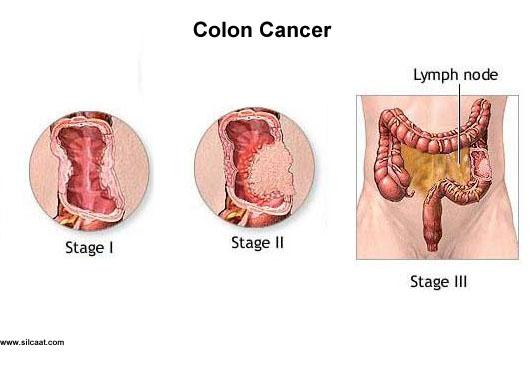 cancer de colon maligno condilom la bărbați pe picioare
