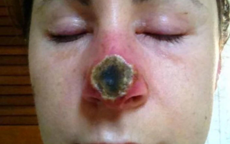 cancer de piele pe nas microscopie giardia