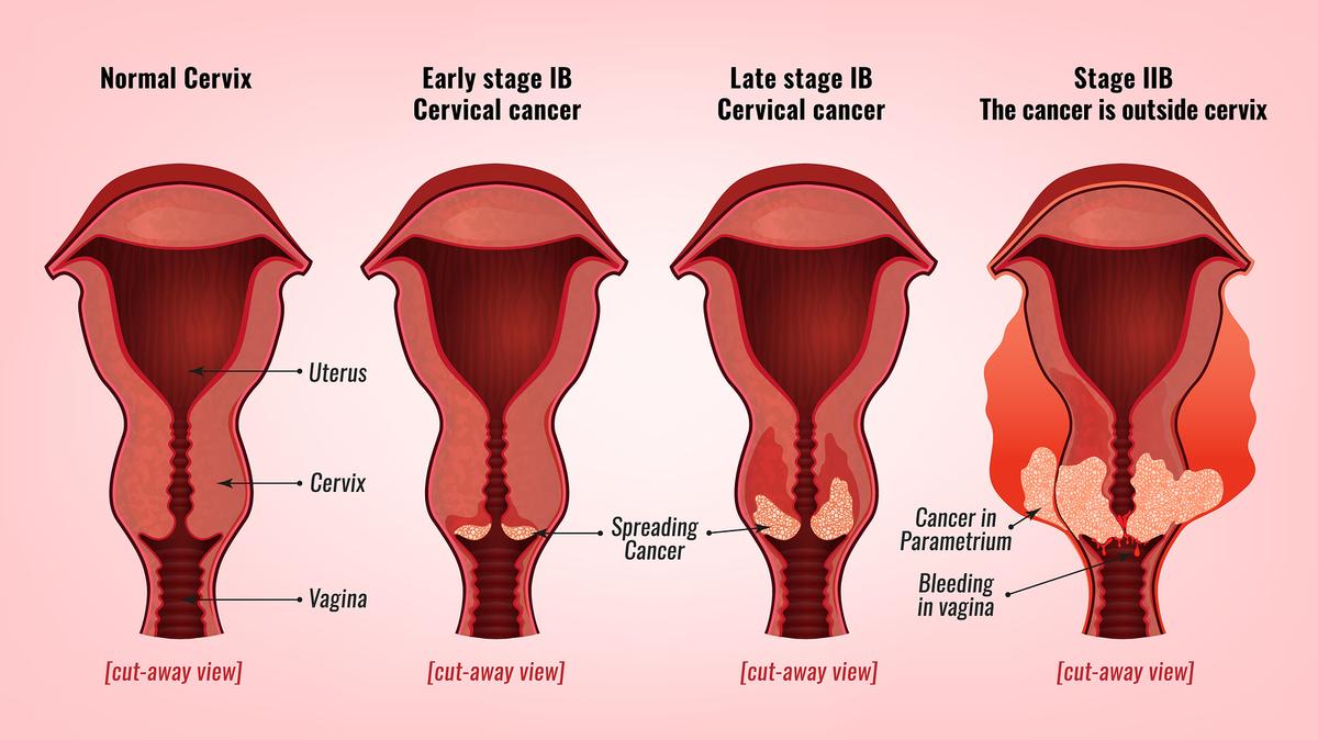 cancer malign se poate trata